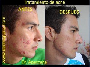 Acné | Antes y después del tratamiento de acné