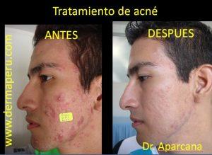 Acné | Antes y después del tratamiento de acné en Lima