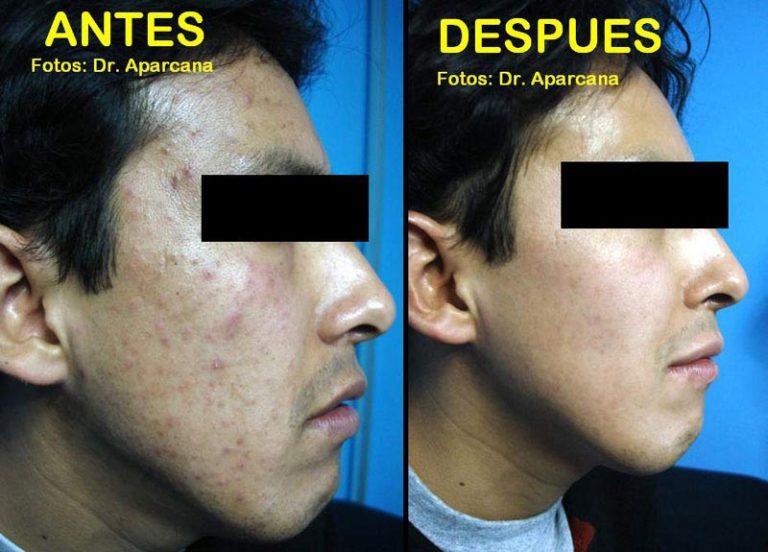Acné | Antes y después del tratamiento de cicatrices de acné