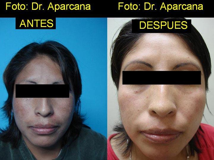 Manchas en la cara Antes y Después - De frente
