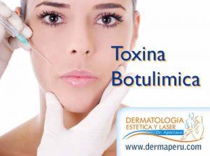 Aplicación de Botox