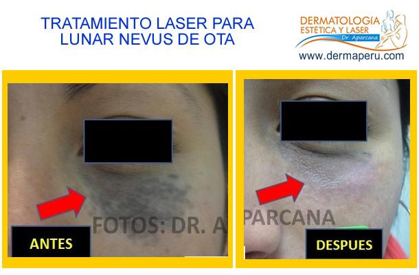 laser para lunar nevus de ota en cara lima peru laser para cara dermatologos lunares-antes-ydespues