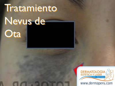 Tratamiento para Nevus de Ota