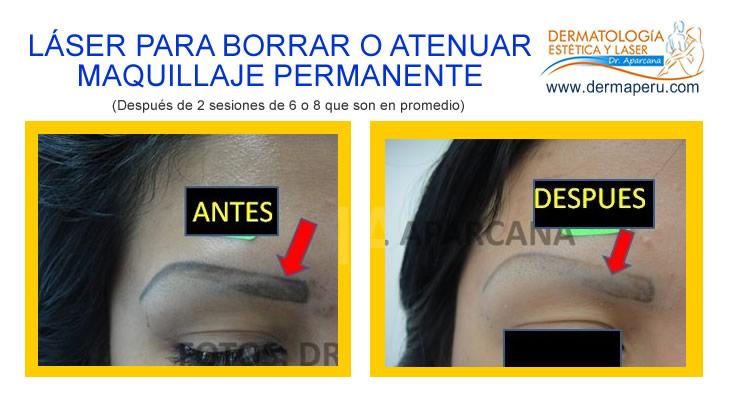 Borrar o Atenuar Maquillaje Permanente