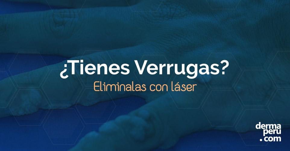 web-Dermaperu-verrugas-tratamiento-laser-peru
