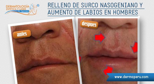 Relleno-de-Surco-nasogeniano-y-aumento-de-labios-en-hombres_1