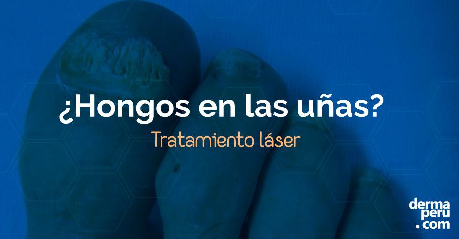 tienes-hongos-en-las-uñas-tratamiento-laser-dermaperu-lima