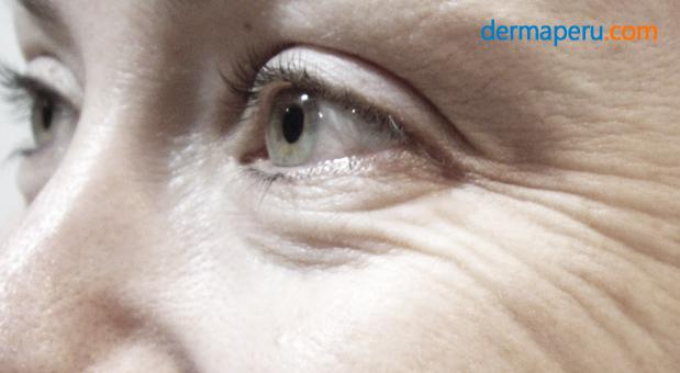 3-dermaperu-mejora-de-las-arrugas-con-toxina-butolinica2