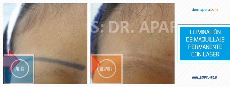 b_eliminacion-de-maquillaje-permanente-con-laser3