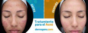 Acné | Antes y después del tratamiento de acné y cicatrices de acné de Tania