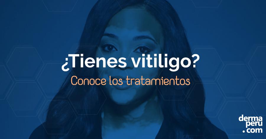 dermaperu-tratamiento-para-vitiligo-en-lima-peru