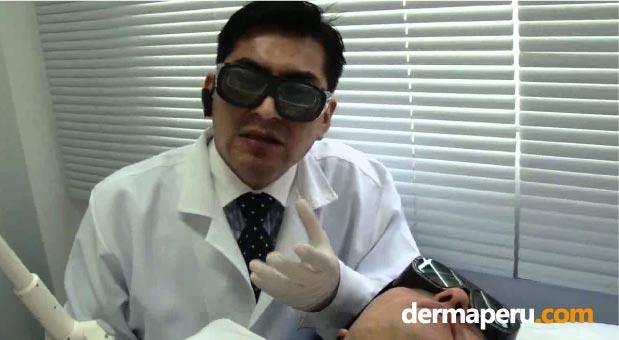 los-tratamientos-láser-causan-quemaduras,-por-dermaperu