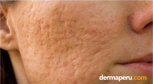 tipos-de-cicatrices-deja-el-acné-por-dermaperu