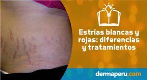tratamiento-láser-para-estrías-blancas-y-rojas-en-lima-peru-por-el-dr-aparcana-en-dermaperu-2