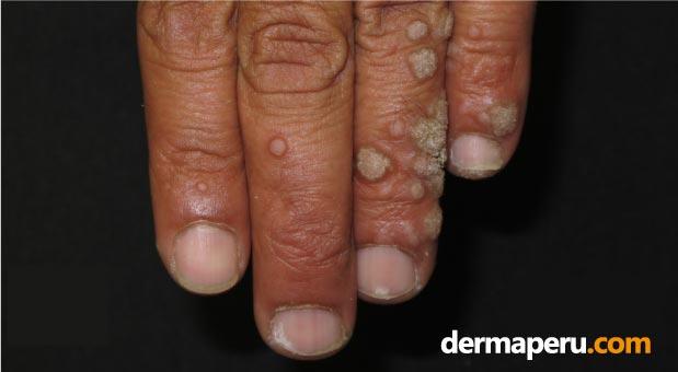 tratamiento-para-verrugas-periungueales-en-lima-peru-por-el-dr-aparcana---dermaperu