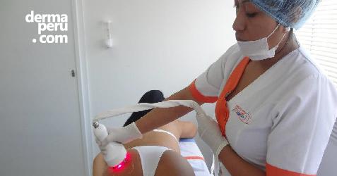 radiofrecuencia-tratamiento-facial-y-corporal-antienvejecimiento