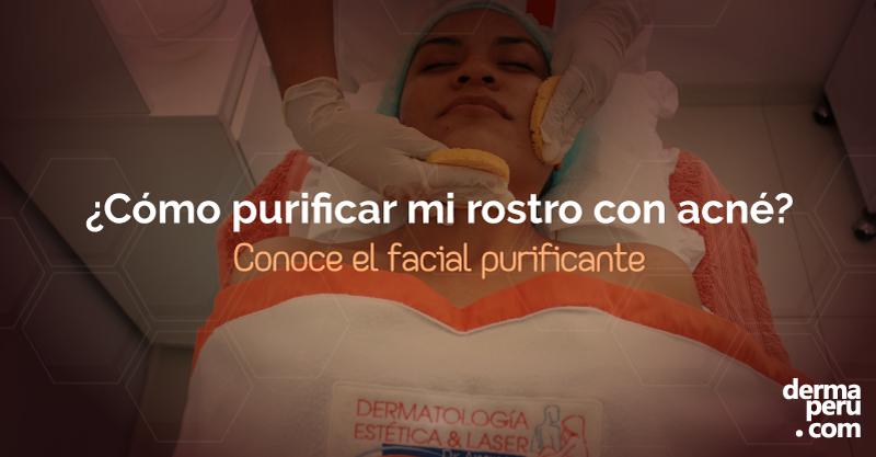 purificacion-de-piel-con-acné-en-lima-peru-limpieza-acné
