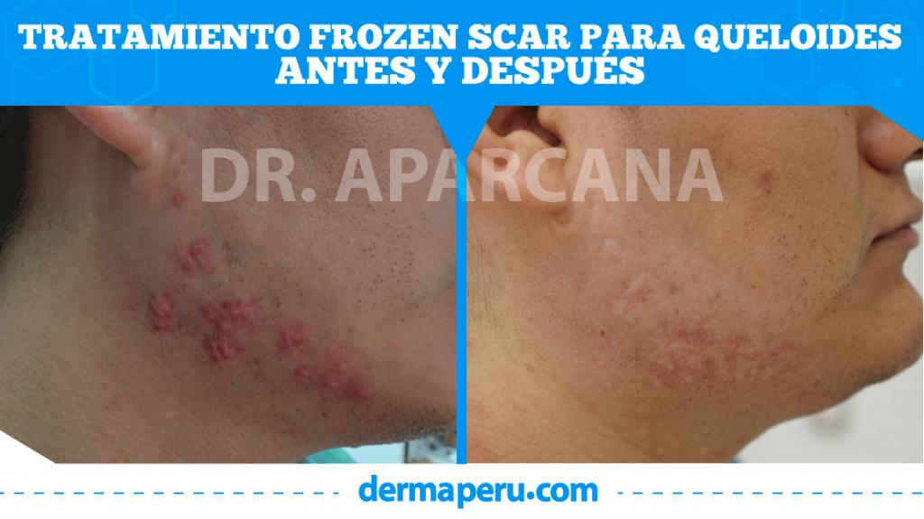 Antes y despúes de Frozen Scar
