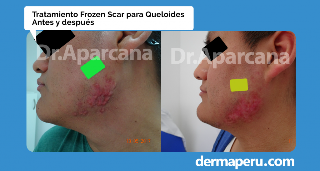 dr aparcana frozen scar antes y despues queloides