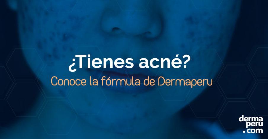 tienes-acné-tratamiento-dermaperu-dr-aparcana