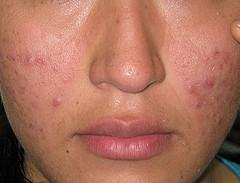 manchas-rojas-de-acne-dermaperu
