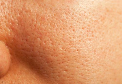 tratamiento-Poros-dilatados-en-lima-peru-dr-aparcana-dermaperu