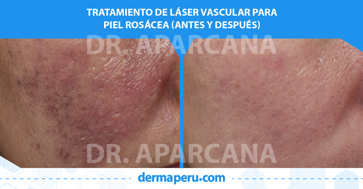 antes-y-despues-láser-vascular-para-rosácea-dermaperu-draparcana-lima-peru-1