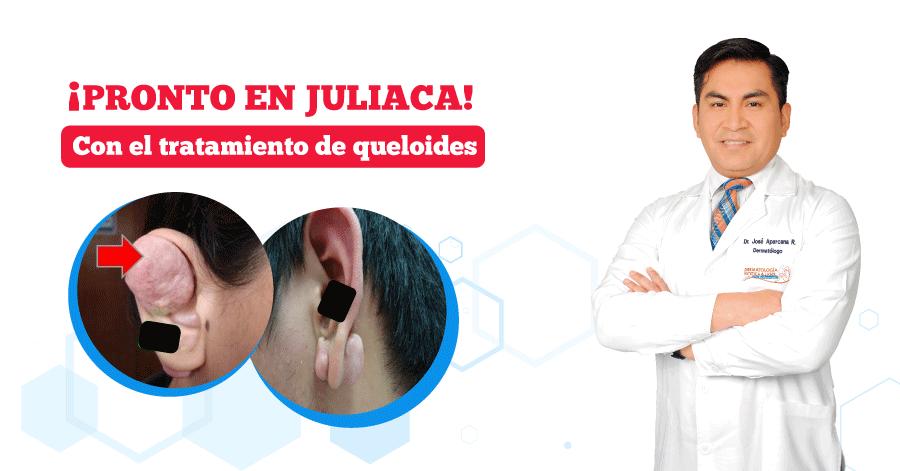 pronto-el-dr-aparcana-en-juliaca