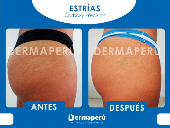 ANTES-Y-DESPUES-ESTRIAS-DERMAPERÚ