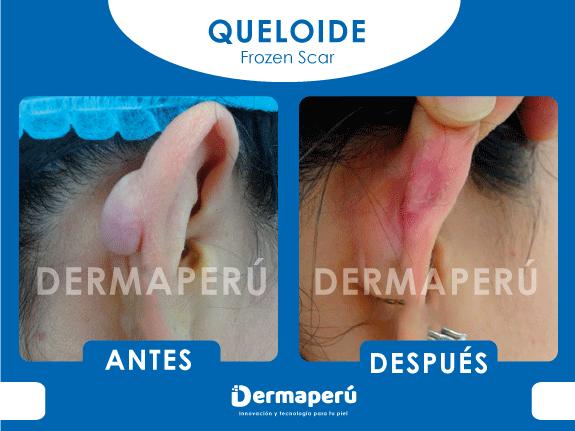 ANTES-Y-DESPUES-QUELOIDE-DERMAPERÚ